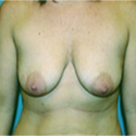 Breast Augmentation before 2740554