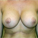 Breast Augmentation after 2740554