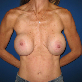 35-44 year old woman treated with Breast Implant Revision before 3666594