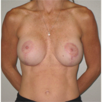 35-44 year old woman treated with Breast Implant Revision after 3666594