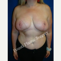 35-44 year old woman treated with Breast Reduction after 3006681