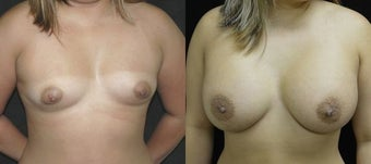 28 year old woman treated with Breast Augmentation before 3004719