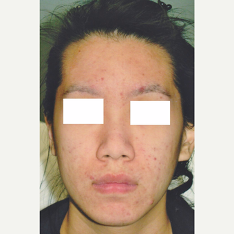 29 year old woman treated with Medically Supervised Skincare before 3056160