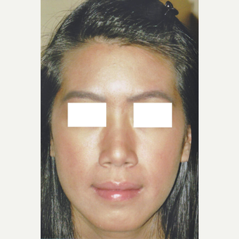 29 year old woman treated with Medically Supervised Skincare after 3056160