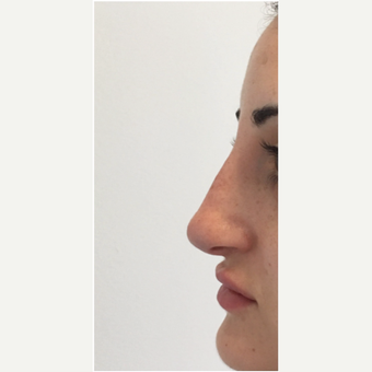 25-34 year old man treated with Non Surgical Nose Job after 3331260