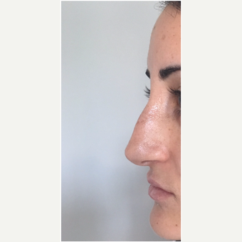 25-34 year old man treated with Non Surgical Nose Job before 3331260