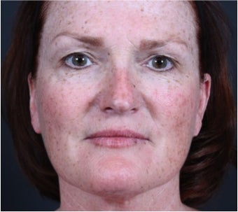 This 50 year old woman underwent laser skin resurfacing before 1317975