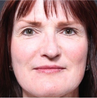 This 50 year old woman underwent laser skin resurfacing after 1317975