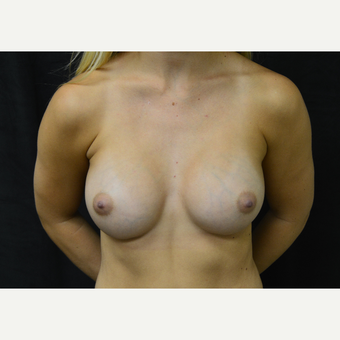 25-34 year old man treated with Breast Augmentation after 3423986