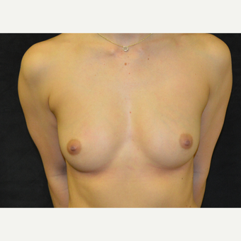 25-34 year old man treated with Breast Augmentation before 3423986