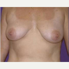 45-54 year old woman treated with Breast Lift before 3423771