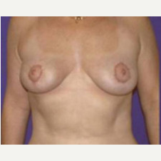 45-54 year old woman treated with Breast Lift after 3423771