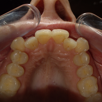 35-44 year old woman treated with Invisalign before 2852154