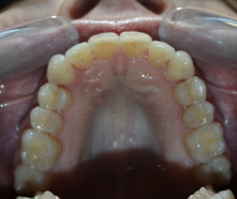 35-44 year old woman treated with Invisalign after 2852154