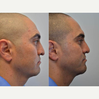 Rhinoplasty 35-44 year old man treated for crooked nose, difficulty breathing, flattened nasal tip after 3114359