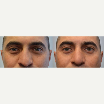 Rhinoplasty 35-44 year old man treated for crooked nose, difficulty breathing, flattened nasal tip before 3114359