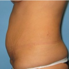 Tummy Tuck before 3665580