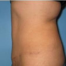 Tummy Tuck after 3665580