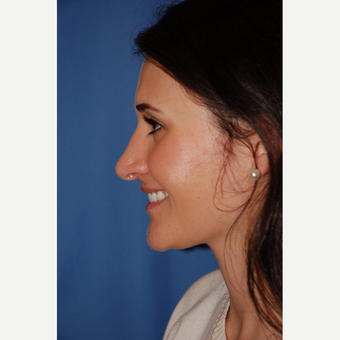 18-24 year old woman treated with Rhinoplasty before 3610155