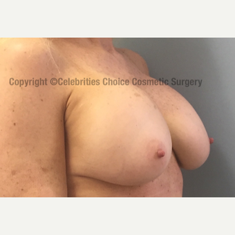 55-64 year old woman treated with Breast Implant Revision before 3022019