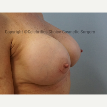 55-64 year old woman treated with Breast Implant Revision after 3022019