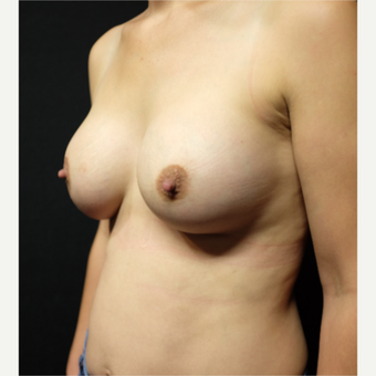35-44 year old woman treated with Breast Augmentation after 3530878