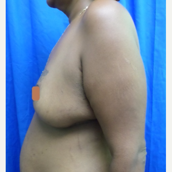 45-54 year old woman treated with Breast Lift after 2994734