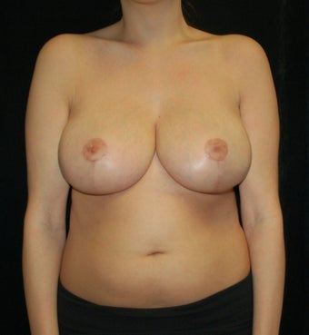 Breast Reduction Case after 731328