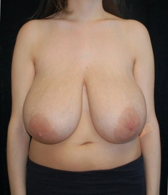 Breast Reduction Case before 731328