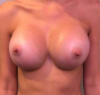 25-34 year old woman treated with Breast Augmentation after 3036507