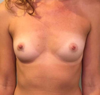 25-34 year old woman treated with Breast Augmentation before 3036507