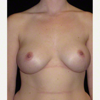 25 year old woman treated with Breast Augmentation after 3103656