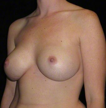 25 year old woman treated with Breast Augmentation 3103656