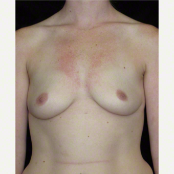 25 year old woman treated with Breast Augmentation before 3103656