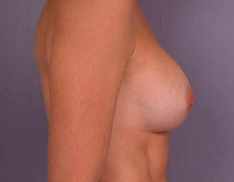 Breast Augmentation before 281425