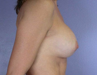 Breast Augmentation after 281425