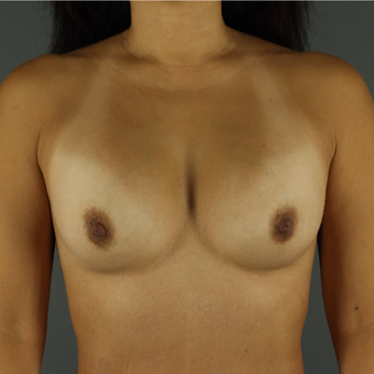 35-44 year old woman treated with Breast Implant Revision before 3043153