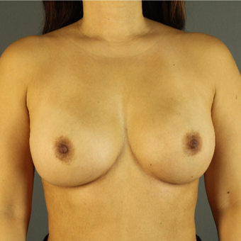 35-44 year old woman treated with Breast Implant Revision after 3043153