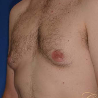 33 year old had male breast reduction surgery before 3502184