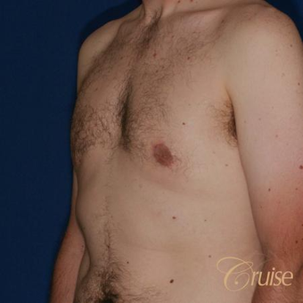 33 year old had male breast reduction surgery after 3502184