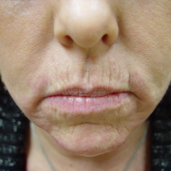 Radiesse and Restylane to Nasolabial Folds, Marionettes and Lips before 2051679