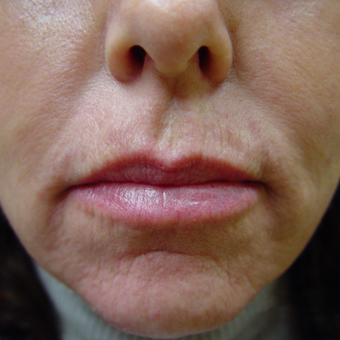 Radiesse and Restylane to Nasolabial Folds, Marionettes and Lips after 2051679