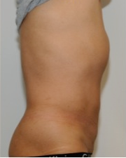 Male Liposuction Before and After - 3 Months 814324