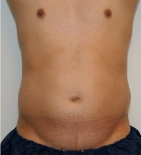 Male Liposuction Before and After - 3 Months before 814324