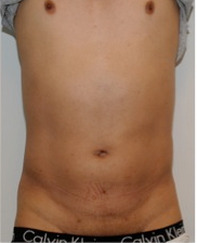 Male Liposuction Before and After - 3 Months after 814324
