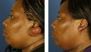 Keloid Removal Before & After 1040833
