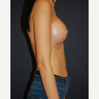 25-34 year old woman treated with Breast Augmentation after 3254161