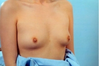 Breast Augmentation before 3446182