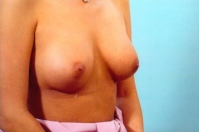 Breast Augmentation after 3446182