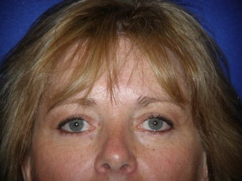 Blepharoplasty after 385221